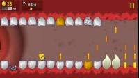 可怕的牙齿攻略06